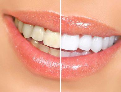 Eryaman Diş Merkezi Ve Hizmetleri