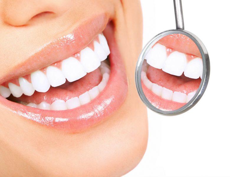 Diş Çarpıklığı Nasıl Tedavi Edilir?