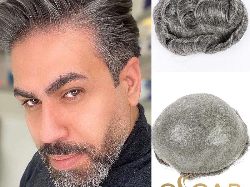Saç Dökülmelerine Karşı Oscar Hair'de Protez Saç Ekimi